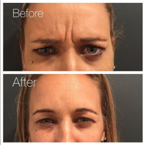 Forehead Wrinkles Before and After - Injectables
