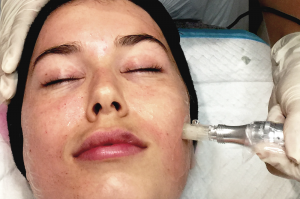 Microdermabrasions Services - Injectables